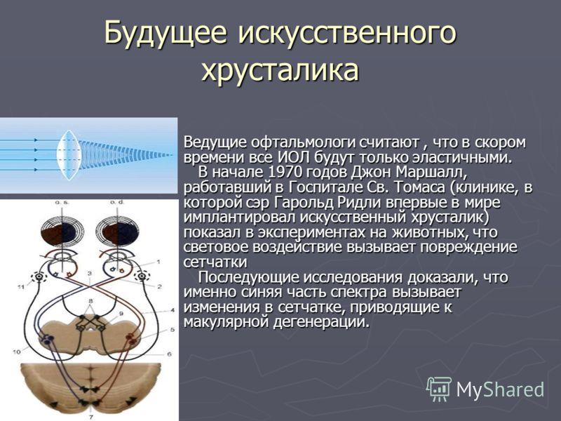 Будущее искусственного хрусталика Ведущие офтальмологи считают, что в скором времени все ИОЛ будут только эластичными. В начале 1970 годов Джон Маршалл, работавший в Госпитале Св. Томаса (клинике, в которой сэр Гарольд Ридли впервые в мире имплантиро