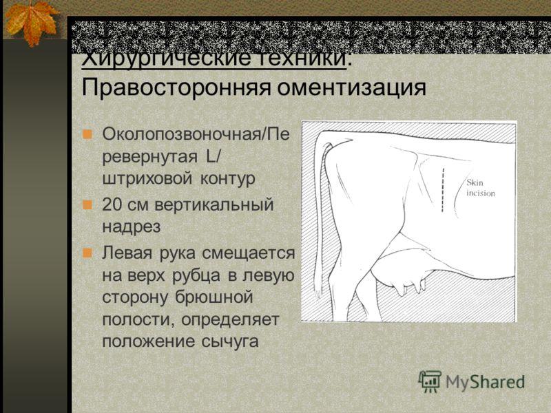 Хирургические техники: Правосторонняя оментизация Околопозвоночная/Пе ревернутая L/ штриховой контур 20 см вертикальный надрез Левая рука смещается на верх рубца в левую сторону брюшной полости, определяет положение сычуга