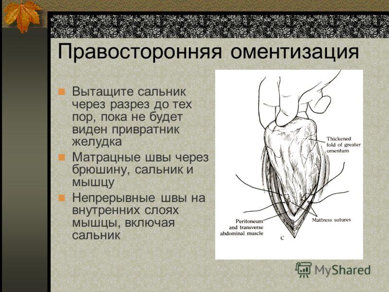 Правосторонняя оментизация Вытащите сальник через разрез до тех пор, пока не будет виден привратник желудка Матрацные швы через брюшину, сальник и мышцу Непрерывные швы на внутренних слоях мышцы, включая сальник
