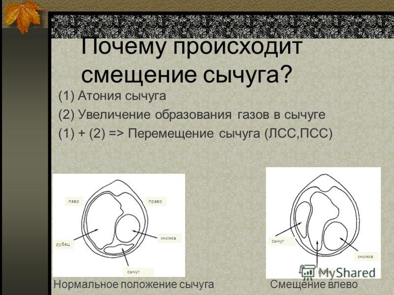 Почему происходит смещение сычуга? (1) Атония сычуга (2) Увеличение образования газов в сычуге (1) + (2) => Перемещение сычуга (ЛСС,ПСС) Нормальное положение сычугаСмещение влево право книжка сычуг рубец лево сычуг рубец книжка