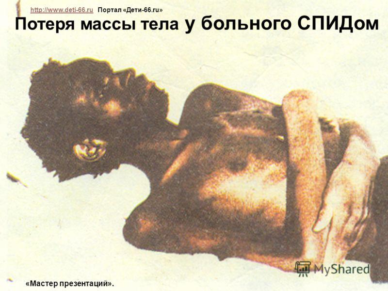 Наблюдаются следующие симптомы: Пятна, сыпь, фурункулы на коже и под кожей Увеличение лимфоузлов Потеря массы тела у больного СПИДом http://www.deti-66.ru Портал «Дети-66.ru» http://www.deti-66.ru «Мастер презентаций».