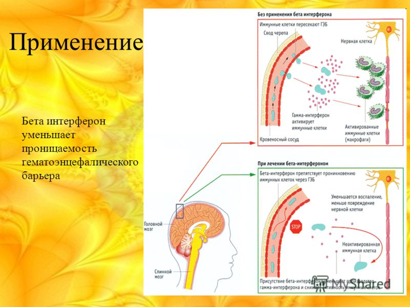 Применение Бета интерферон уменьшает проницаемость гематоэнцефалического барьера