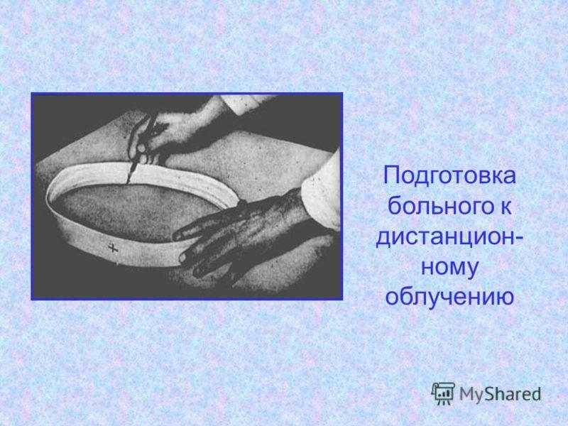 Подготовка больного к дистанцион- ному облучению