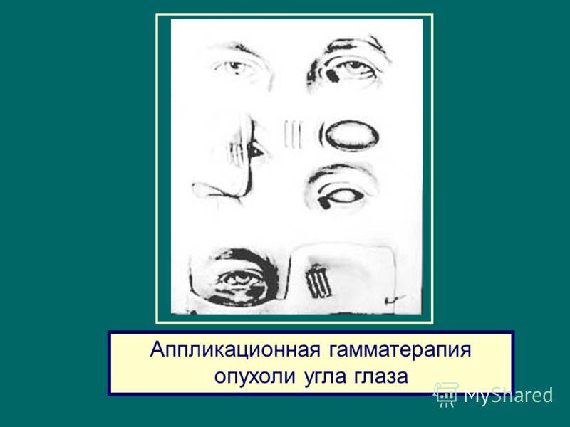 Аппликационная гамматерапия опухоли угла глаза
