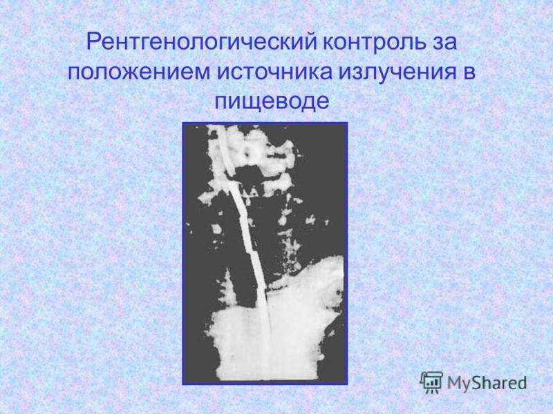 Рентгенологический контроль за положением источника излучения в пищеводе