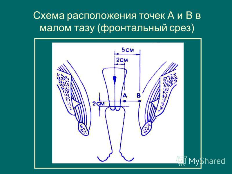 Схема расположения точек А и В в малом тазу (фронтальный срез)