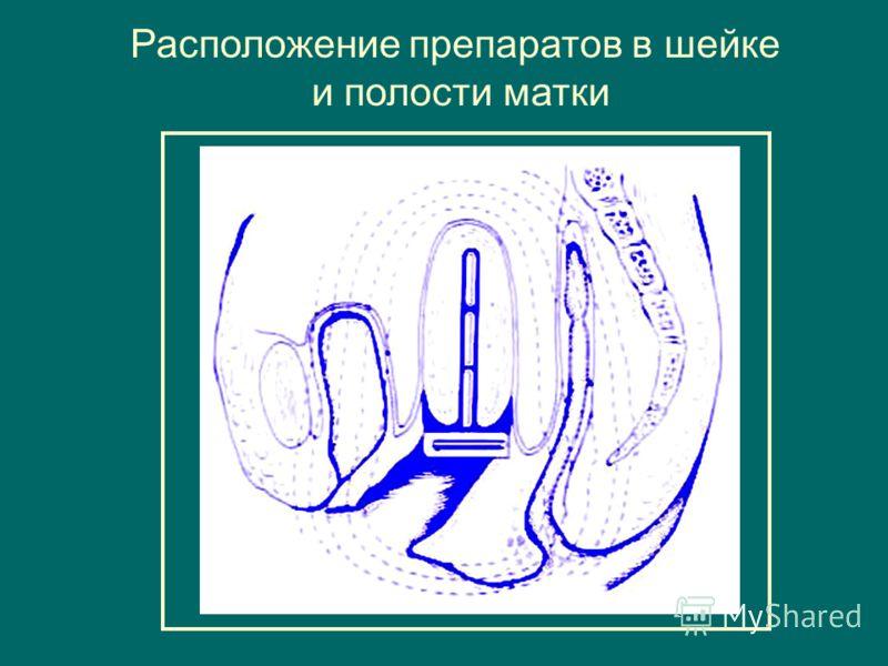 Расположение препаратов в шейке и полости матки