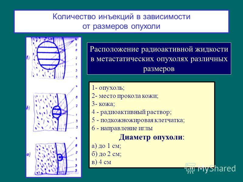 Количество инъекций в зависимости от размеров опухоли Расположение радиоактивной жидкости в метастатических опухолях различных размеров 1- опухоль; 2- место прокола кожи; 3- кожа; 4 - радиоактивный раствор; 5 - подкожножировая клетчатка; 6 - направле