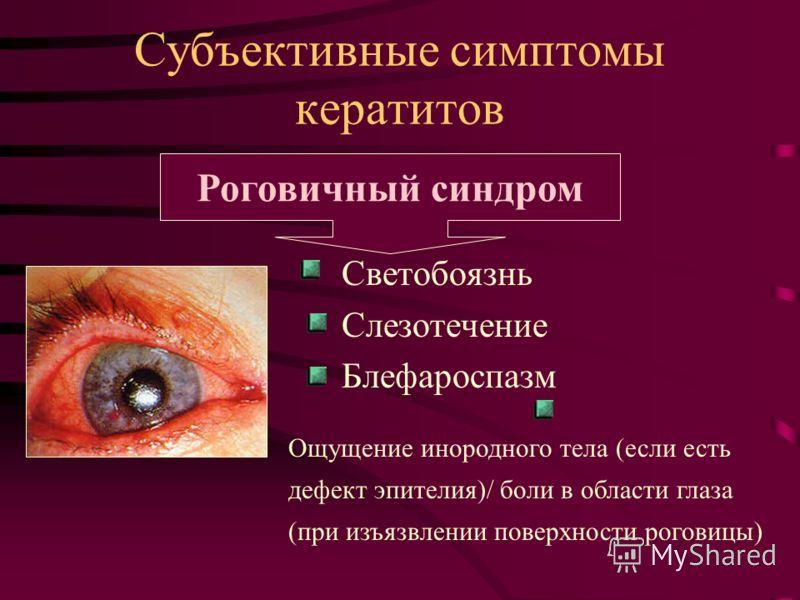 Субъективные симптомы кератитов Светобоязнь Слезотечение Блефароспазм Роговичный синдром Ощущение инородного тела (если есть дефект эпителия)/ боли в области глаза (при изъязвлении поверхности роговицы)