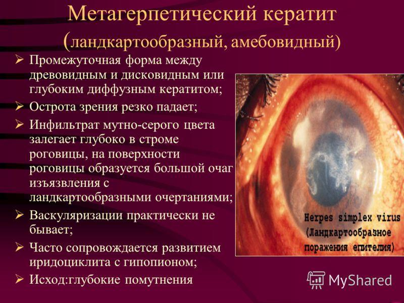 Метагерпетический кератит ( ландкартообразный, амебовидный) Промежуточная форма между древовидным и дисковидным или глубоким диффузным кератитом; Острота зрения резко падает; Инфильтрат мутно-серого цвета залегает глубоко в строме роговицы, на поверх