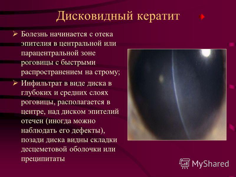 Дисковидный кератит Болезнь начинается с отека эпителия в центральной или парацентральной зоне роговицы с быстрыми распространением на строму; Инфильтрат в виде диска в глубоких и средних слоях роговицы, располагается в центре, над диском эпителий от