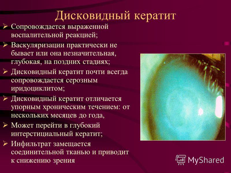 Дисковидный кератит Сопровождается выраженной воспалительной реакцией; Васкуляризации практически не бывает или она незначительная, глубокая, на поздних стадиях; Дисковидный кератит почти всегда сопровождается серозным иридоциклитом; Дисковидный кера