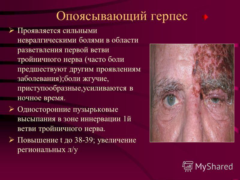 Опоясывающий герпес Проявляется сильными невралгическими болями в области разветвления первой ветви тройничного нерва (часто боли предшествуют другим проявлениям заболевания);боли жгучие, приступообразные,усиливаются в ночное время. Односторонние пуз