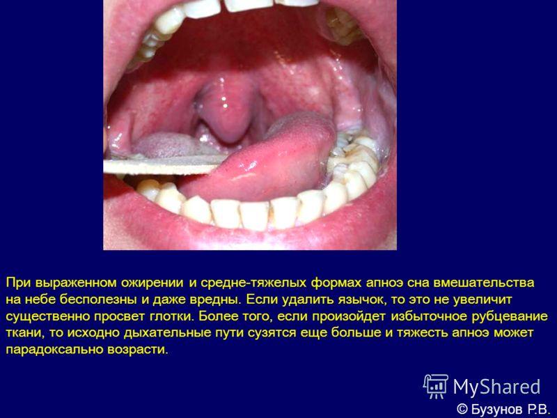 Увулопалатофарингопластика фото
