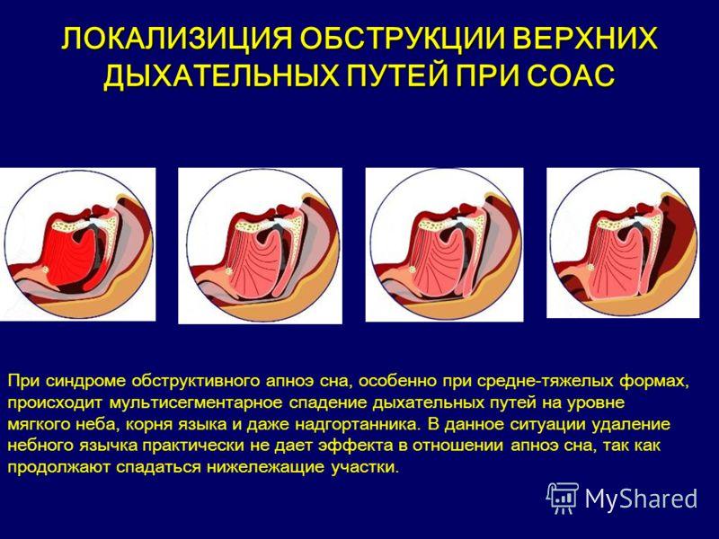 ЛОКАЛИЗИЦИЯ ОБСТРУКЦИИ ВЕРХНИХ ДЫХАТЕЛЬНЫХ ПУТЕЙ ПРИ СОАС При синдроме обструктивного апноэ сна, особенно при средне-тяжелых формах, происходит мультисегментарное спадение дыхательных путей на уровне мягкого неба, корня языка и даже надгортанника. В