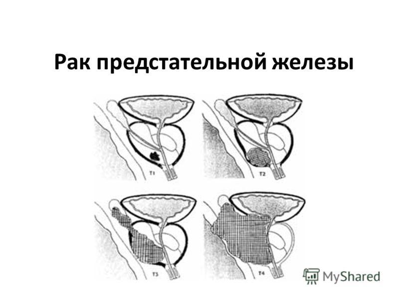 Карцинома Цервикальная