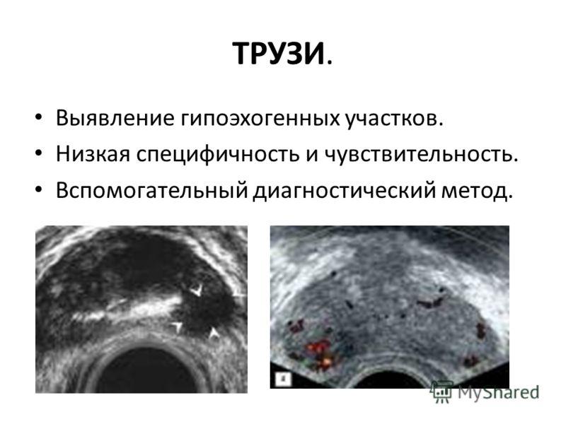 ТРУЗИ. Выявление гипоэхогенных участков. Низкая специфичность и чувствительность. Вспомогательный диагностический метод.