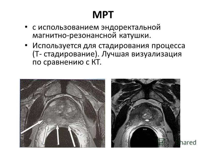 МРТ с использованием эндоректальной магнитно-резонансной катушки. Используется для стадирования процесса (Т- стадирование). Лучшая визуализация по сравнению с КТ.
