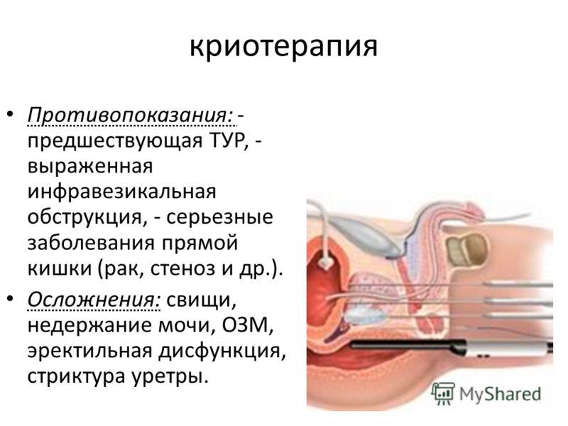 криотерапия Противопоказания: - предшествующая ТУР, - выраженная инфравезикальная обструкция, - серьезные заболевания прямой кишки (рак, стеноз и др.). Осложнения: свищи, недержание мочи, ОЗМ, эректильная дисфункция, стриктура уретры.