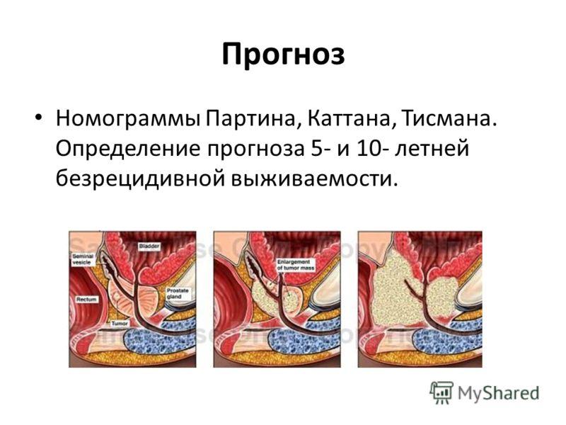 Прогноз Номограммы Партина, Каттана, Тисмана. Определение прогноза 5- и 10- летней безрецидивной выживаемости.