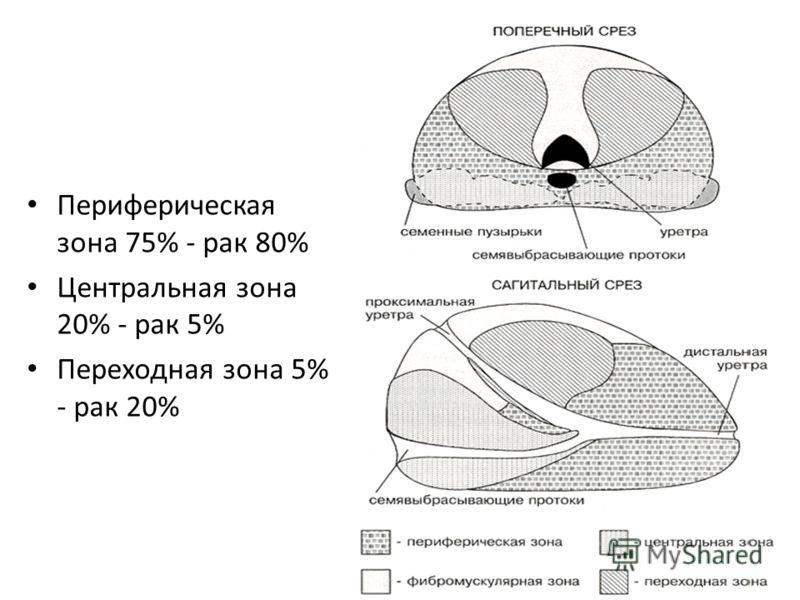 Периферическая зона 75% - рак 80% Центральная зона 20% - рак 5% Переходная зона 5% - рак 20%