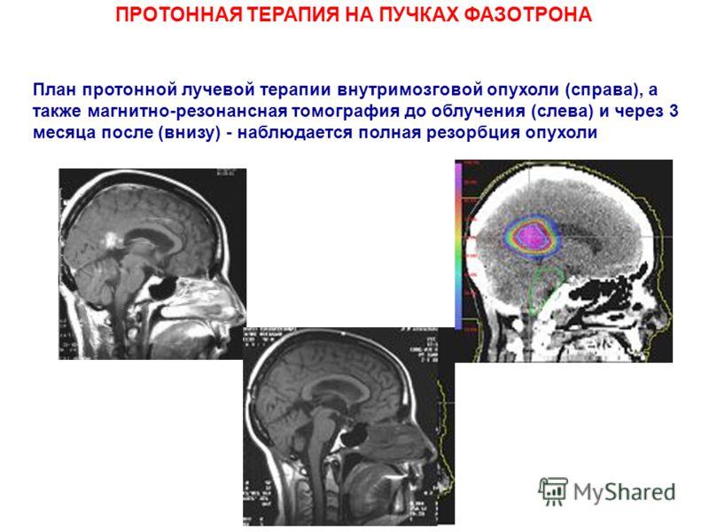 ПРОТОННАЯ ТЕРАПИЯ НА ПУЧКАХ ФАЗОТРОНА План протонной лучевой терапии внутримозговой опухоли (справа), а также магнитно-резонансная томография до облучения (слева) и через 3 месяца после (внизу) - наблюдается полная резорбция опухоли
