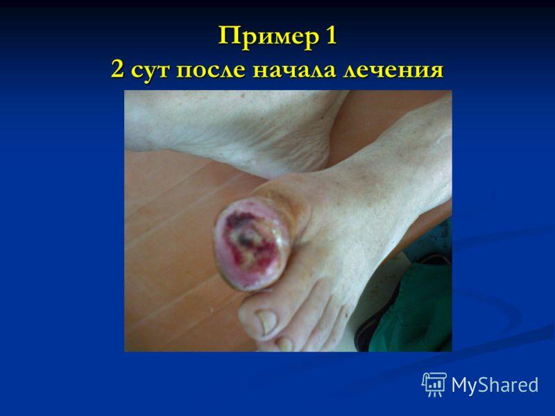 Пример 1 2 сут после начала лечения