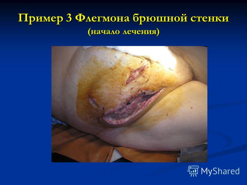 Пример 3 Флегмона брюшной стенки (начало лечения)