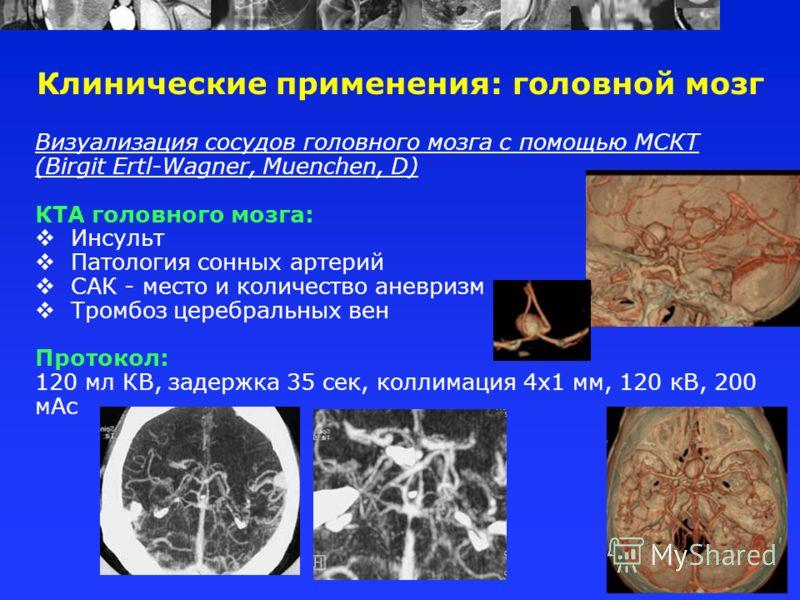 Визуализация сосудов головного мозга с помощью МСКТ (Birgit Ertl-Wagner, Muenchen, D) КТА головного мозга: Инсульт Патология сонных артерий САК - место и количество аневризм Тромбоз церебральных вен Протокол: 120 мл КВ, задержка 35 сек, коллимация 4х