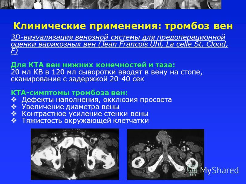 Клинические применения: тромбоз вен 3D-визуализация венозной системы для предоперационной оценки варикозных вен (Jean Francois Uhl, La celle St. Cloud, F) Для КТА вен нижних конечностей и таза: 20 мл КВ в 120 мл сыворотки вводят в вену на стопе, скан