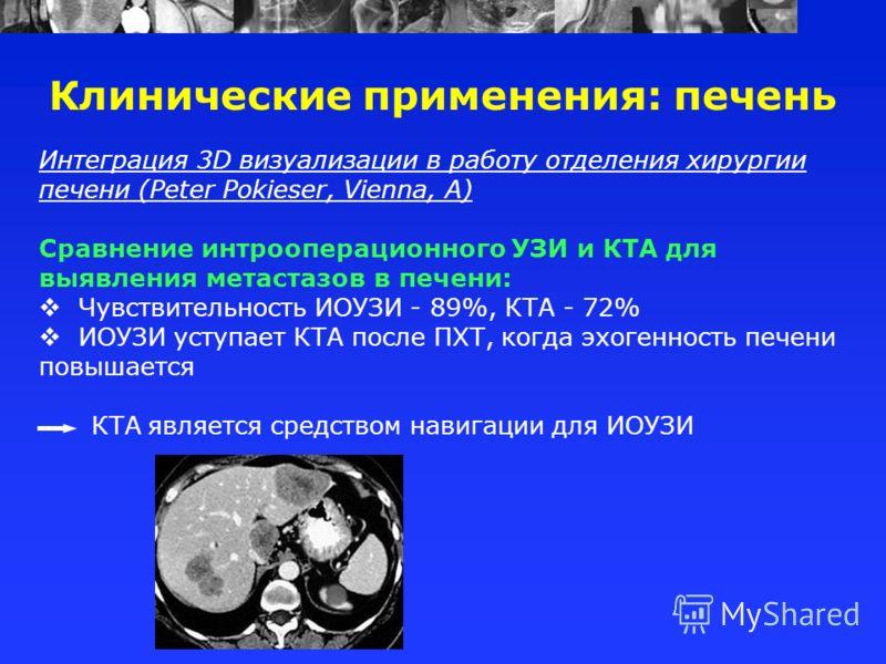 Интеграция 3D визуализации в работу отделения хирургии печени (Peter Pokieser, Vienna, A) Сравнение интрооперационного УЗИ и КТА для выявления метастазов в печени: Чувствительность ИОУЗИ - 89%, КТА - 72% ИОУЗИ уступает КТА после ПХТ, когда эхогенност