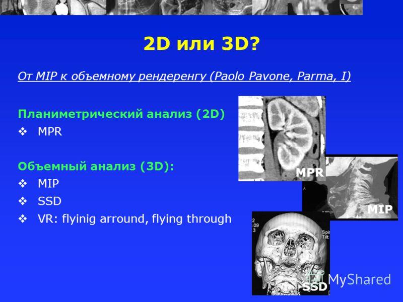 2D или 3D? От MIP к объемному рендеренгу (Paolo Pavone, Parma, I) Планиметрический анализ (2D) MPR Объемный анализ (3D): MIP SSD VR: flyinig arround, flying through MPR MIP SSD
