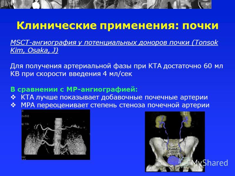 MSCT-ангиография у потенциальных доноров почки (Tonsok Kim, Osaka, J) Для получения артериальной фазы при КТА достаточно 60 мл КВ при скорости введения 4 мл/сек В сравнении с МР-ангиографией: КТА лучше показывает добавочные почечные артерии МРА перео