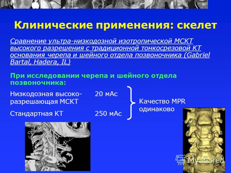 Сравнение ультра-низкодозной изотропической МСКТ высокого разрешения с традиционной тонкосрезовой КТ основания черепа и шейного отдела позвоночника (Gabriel Bartal, Hadera, IL) При исследовании черепа и шейного отдела позвоночника: Клинические примен