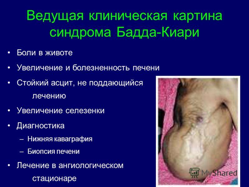 Ведущая клиническая картина синдрома Бадда-Киари Боли в животе Увеличение и болезненность печени Стойкий асцит, не поддающийся лечению Увеличение селе