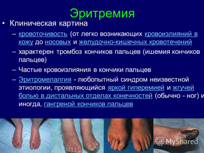 Эритремия Клиническая картина –кровоточивость (от легко возникающих кровоизлияний в кожу до носовых и желудочно-кишечных кровотеченийкровоточивостькро