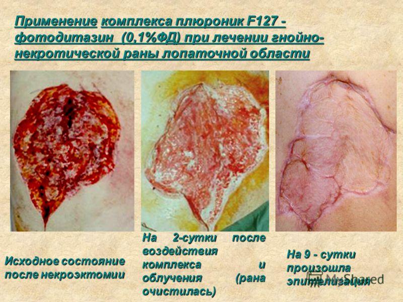 Применение комплекса плюроник F127 - фотодитазин (0,1%ФД) при лечении гнойно- некротической раны лопаточной области Исходное состояние после некроэктомии На 2-сутки после воздействия комплекса и облучения (рана очистилась) На 9 - сутки произошла эпит