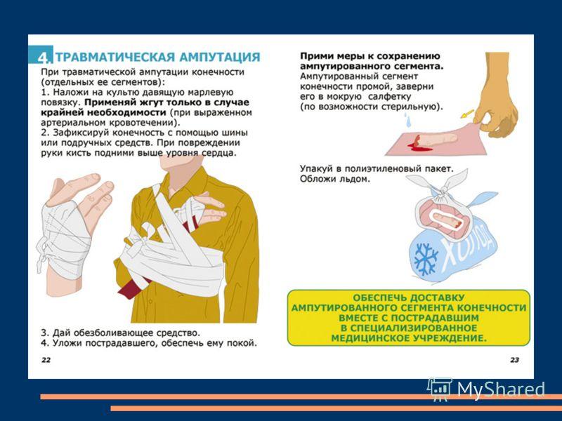 Внутреннее: Если кровотечение происходит около поверхности кожи, приложить холодный предмет (например, лёд) или обработать холодной водой. Если же нет, мы должны доставить пострадавшего в медпункт. Больше мы ничем не можем помочь. Носовое: При носово