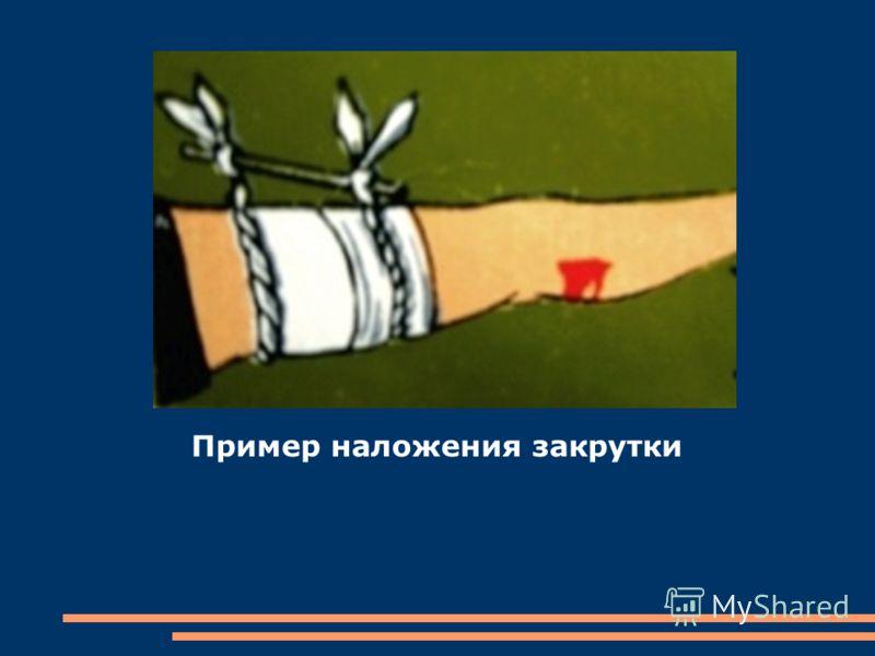 Наложение закрутки при кровотечениях: Иногда, в нужный момент, у нас может не оказаться под рукой жгута. В этом случае можно наложить закрутку. Порядок действий таков: Так же, как и при наложении жгута, прижимаем артерию и на 5 см выше раны наматывае