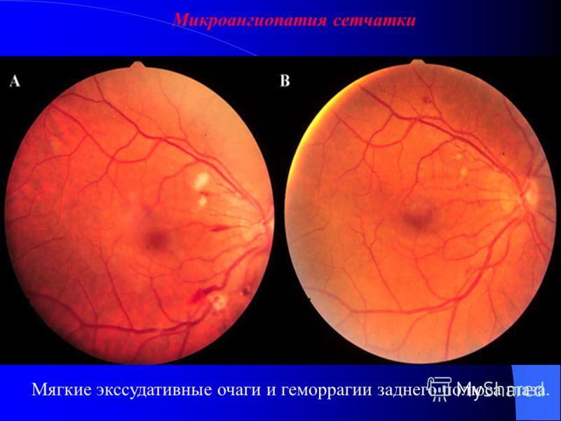 Поражение заднего отдела глаза Задний отдел глаза включает сетчатку, сосудистую оболочку, диск зрительного нерва. К типичным симптомам относятся плавающие пятна, фотопсия, дефекты поля зрения и снижение остроты зрения. Слабая реакция зрачка на свет у