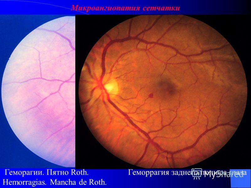 Микроангиопатия сетчатки Мягкие экссудативные очаги. Мягкие экссудативные очаги и геморрагии заднего полюса глаза.