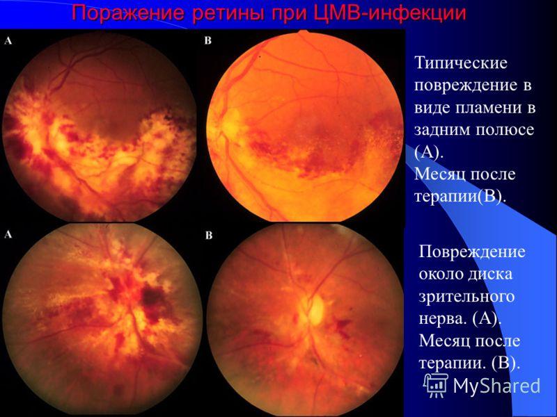 Цитомегаловирусный ретинит возникает у 30-40% ВИЧ- инфицированных пациентов в развитых странах, обычно при количестве CD4+- лимфоцитов ниже 100 клеток в 1 мл. Пациенты жалуются на появление плавающих пятен, фотопсию, выпадение поля зрения и пелену пе