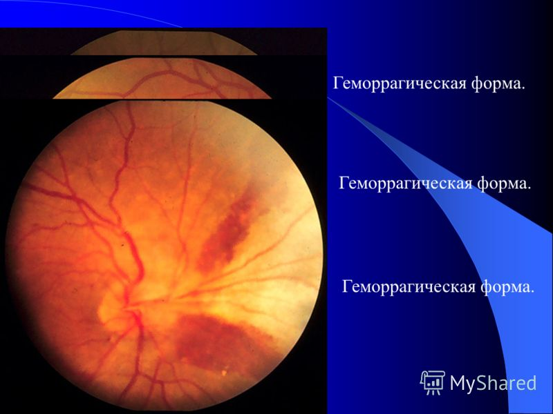 Типические зернистые повреждение без геморрагии.