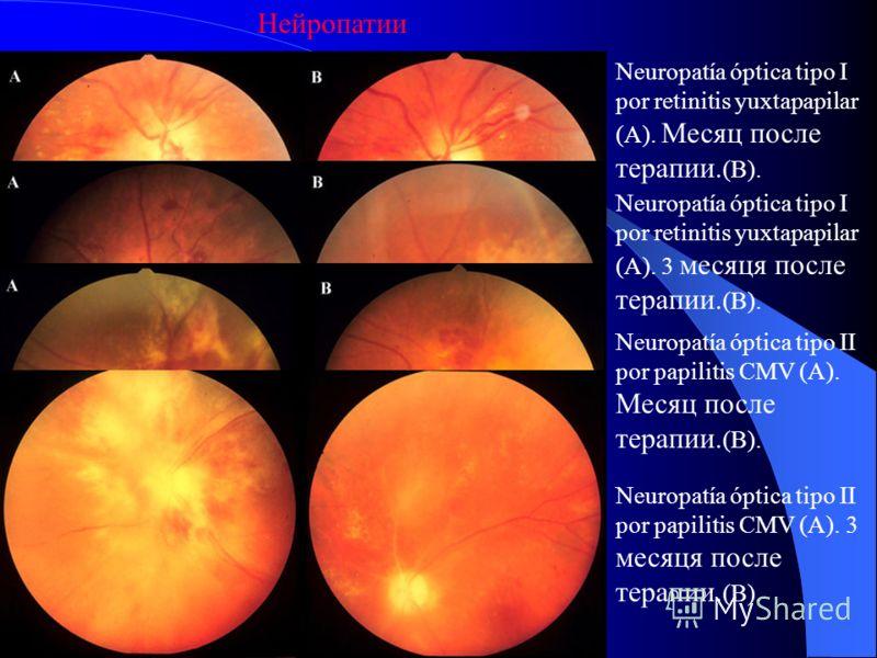 Нейроофтальмологические проявления Встречаются у 10-15% ВИЧ-инфицированных пациентов. Чаще всего отмечаются отек диска зрительного нерва, обусловленный повышением внутричерепного давления, параличи черепных нервов, глазодвигательные нарушения и выпад