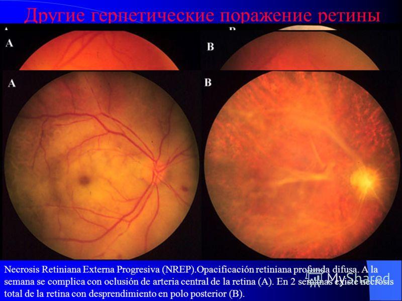 Другие герпетические поражение ретины Острый некроз сетчатки. Витрит, периферический ретинит. Наружный прогрессивный некроз Ретинит всей толщины сетчатки.