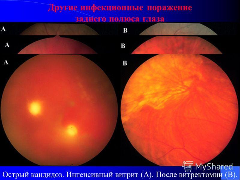 Другие инфекционные поражение заднего полюса глаза Токсоплазмоз. Некротизируюший ретинит (A). 2 месяца после терапии (B). 6 месяц после (C). После года (D). Токсоплазмоз.Предний увеит (A). Некротизируюший ретинит (B). 6 месяц после (C).