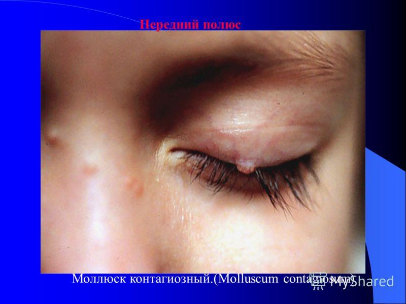Поражения глаз у детей ВИЧ-ассоциированные поражения глаз у детей встречаются реже, чем у взрослых; в особенности это относится к цитомегаловирусному ретиниту, распространенность которого очень невелика (примерно 5%). Это может быть связано как с ины
