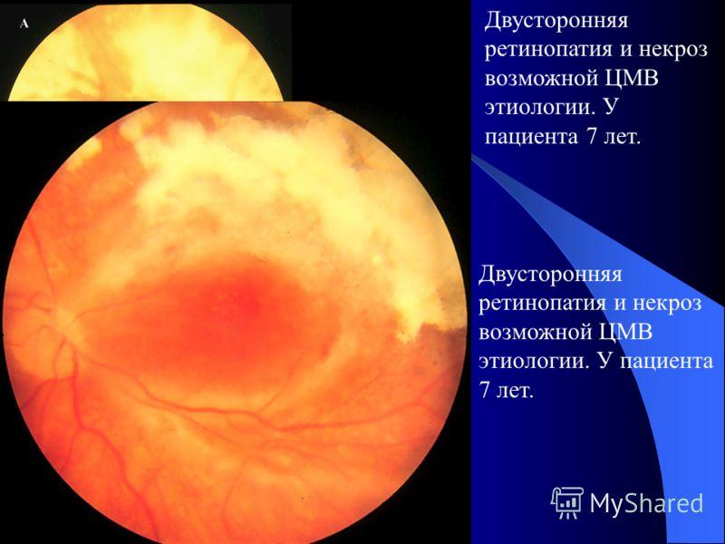 Задний полюс. Острый односторонний некроз сетчатки у пациента в анамнезе который herpes zoster и грубые повреждение(A). Рубцовые повреждение и отслойка сетчатки 2 месяца после терапии (B и C).