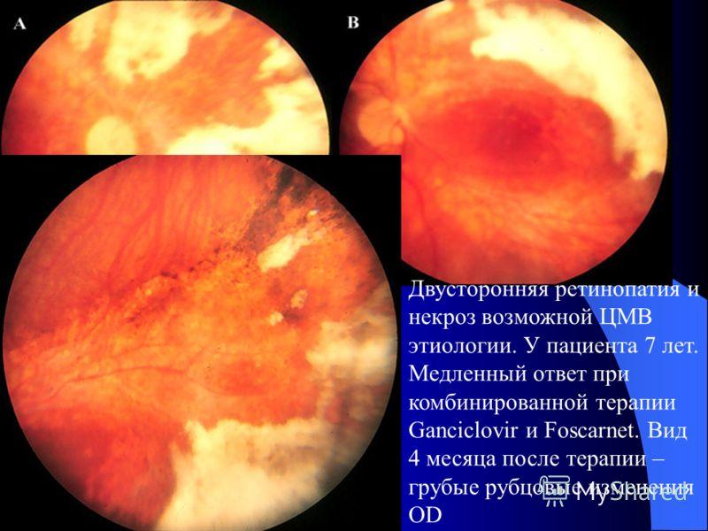 Двусторонняя ретинопатия и некроз возможной ЦМВ этиологии. У пациента 7 лет.