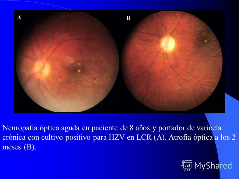 Двусторонняя ретинопатия и некроз возможной ЦМВ этиологии. У пациента 7 лет. Медленный ответ при комбинированной терапии Ganciclovir и Foscarnet. Вид 4 месяца после терапии –г рубцовые изменения OL.